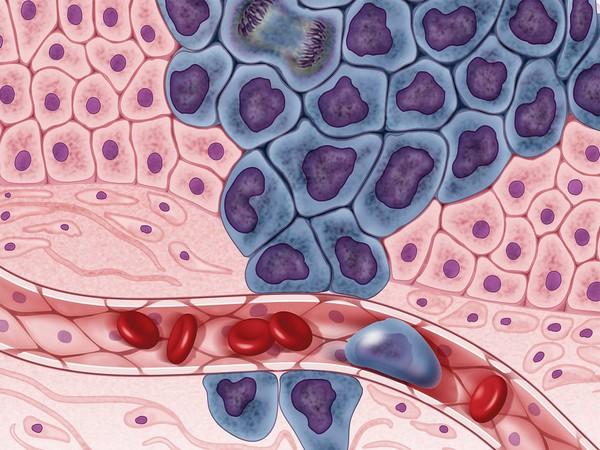 An illustration of cancer cells