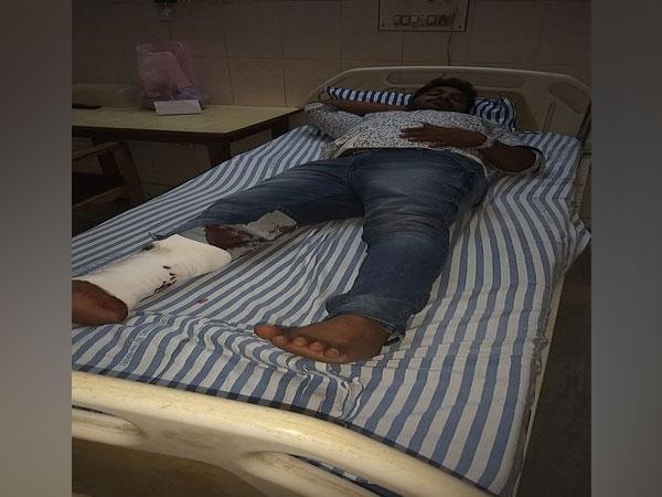 Injured criminal Girish. Photo/ANI