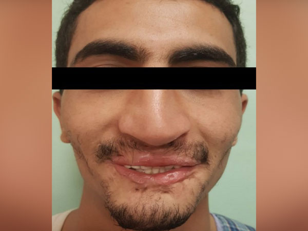 A picture of the patient after the surgery.