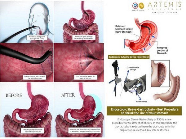Artemis Hospital performs North India's First Endoscopic Sleeve Gastroplasty (ESG) in Haryana