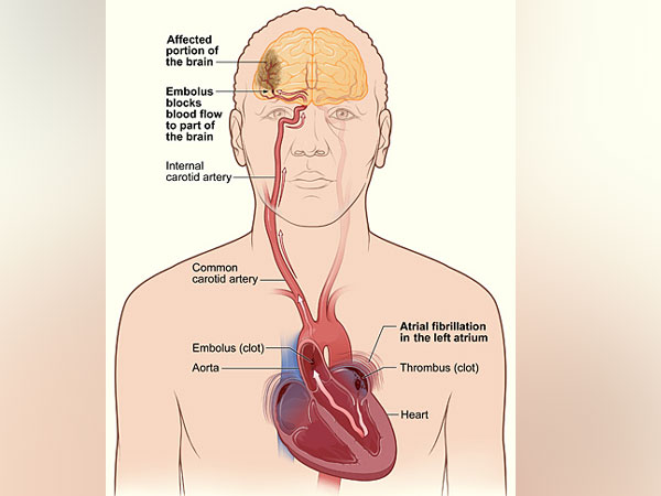 Rapid heartbeat can lead to stroke, heart failure, and other complications.