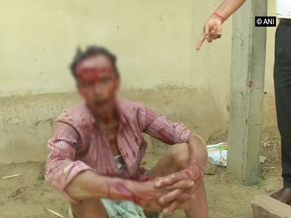 BJP worker injured in clash with TMC workers near booth number 1 in Bankura. Photo/ANI