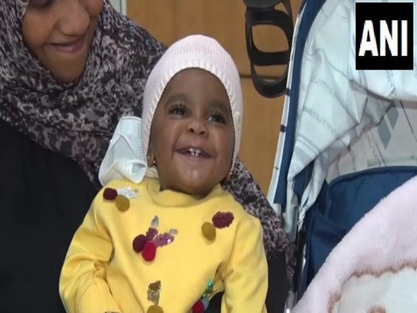 Doctors of Artemis hospital performed a liver transplant of a one-year-old girl child 'Hoor' of Saudi Arabia (Photo/ANI)