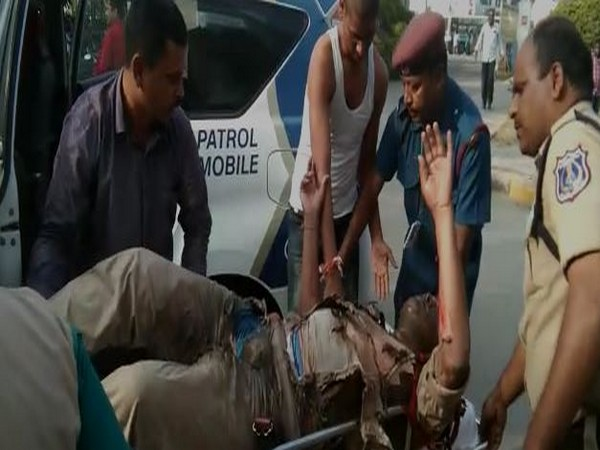 Narsimha being shifted to a hospital after he suffered burn injuries on Friday in Hyderabad. Photo/ANI