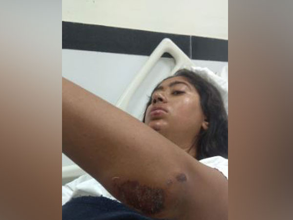 Joymala Bagchi being treated for her injuries at AIIMS New Delhi. Photo/ANI