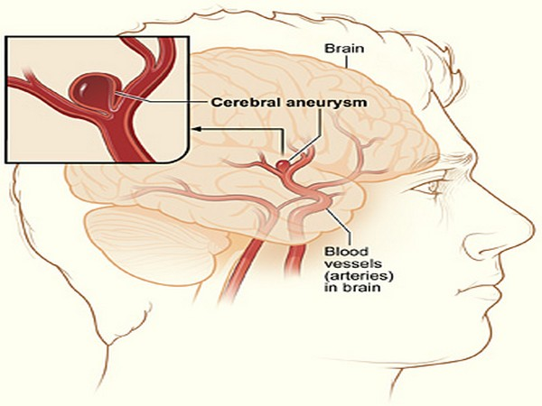 Brain aneurysms are bulging or ballooning in a blood vessel in the brain which could potentially prove to be deadly