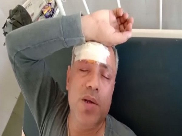 Asaram case prime witnesses Mohinder Chawla was assaulted in Panipat. Photo/ANI