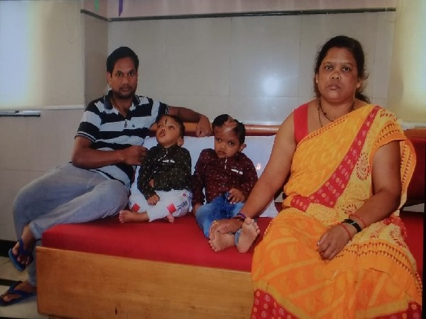 The two conjoined twins from Odisha with their parents. (File photo/ANI)