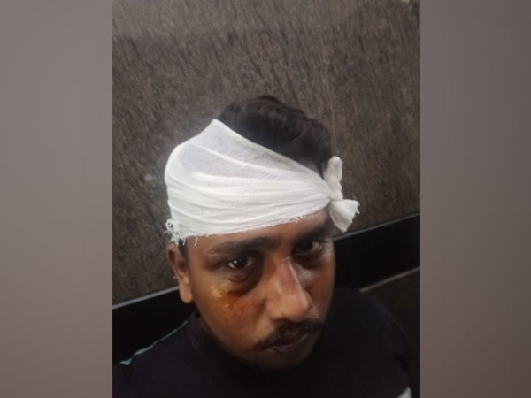 Delivery person Rahul Sharma alleged he was assaulted by six Shiv Sena workers (Photo/ANI)