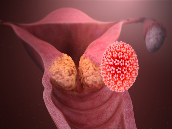 HPV causing Cervical Cancer