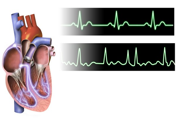 Taller people may develop atrial fibrillation: Study - ANI News