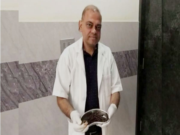 Dr Anil Saini had done the operation and removed 116 nails from man's stomach. Photo/ANI