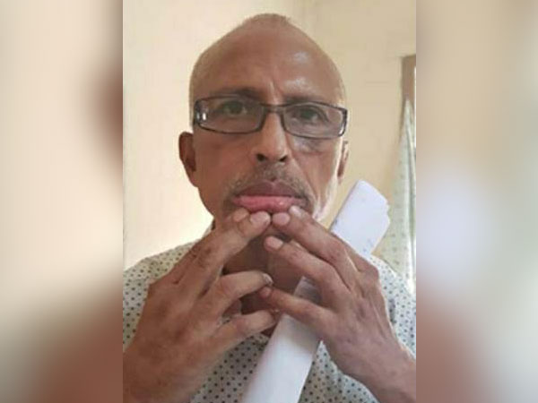 A photo of Dr Sudhakar placed at Mental Hospital Vizag (File photo)