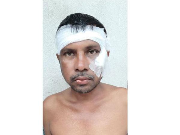 TMC worker Ranjit Mondal (Photo/ANI)