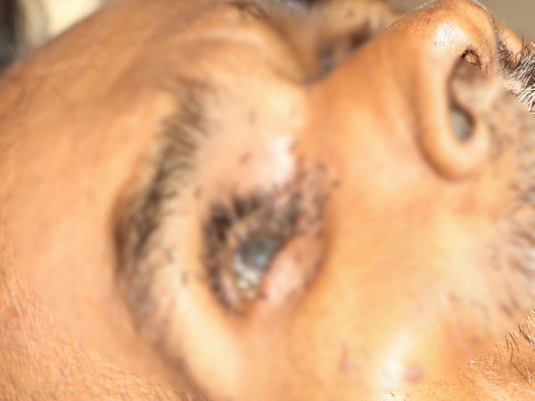Ants crawling inside an eye of Balchandra Lodhi after his death at Shivpuri district hospital
