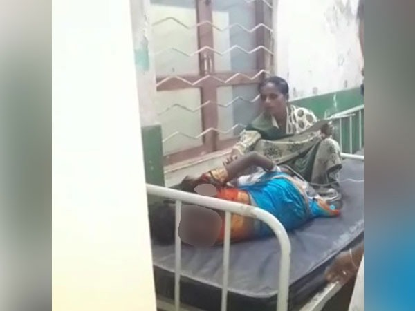 Telangana: Woman injured in acid attack in Jagtial district