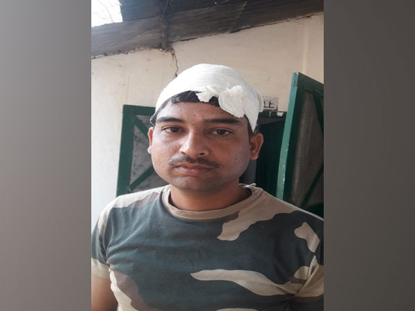 Constable G Sarwan, who was injured in an attack by miscreants on February 27.