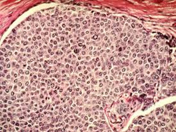 """""""Women want, and deserve more usable information about breast cancer risk,"""" say researchers"""