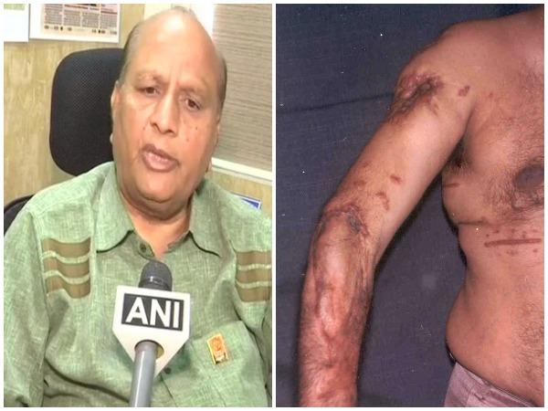 A victim of 1993 Bombay Blast case, Kirti Ajmera, demands compensation on Friday. Photo/ANI