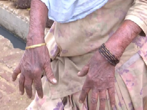 A woman of Kanakwal village in Bathinda district shows her hands allegedly affected by Sulphur gas. Photo/ANI