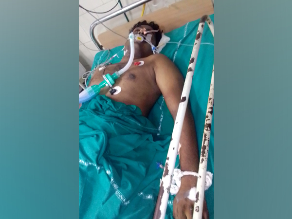 The kin of Kiran Kumar have alleged that the police beat him up badly for not wearing a mask. (Photo/ANI)