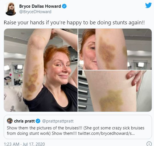 Bryce Dallas Howard shows off massive bruises from 'Jurassic World ...