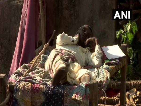 Locals in Chukru village Palamu are suffering from fluorosis