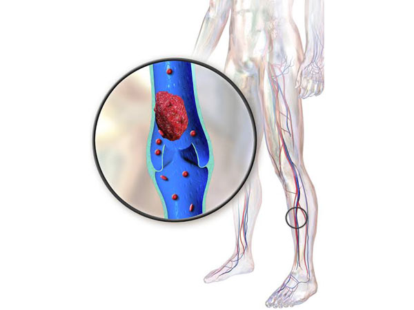 Thrombosis is a condition which forms blood clots in blood vessels, artery or vein, making a person prone to heart attack, stroke, or a life-threatening clot in the lungs.