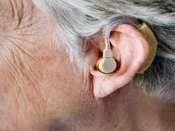 Previous research has shown that hearing loss is linked to a loss of brain function, memory and an increased risk of dementia.