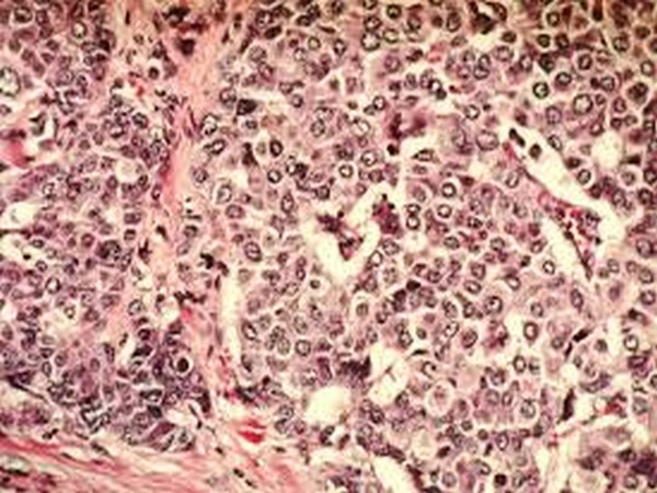Breast Cancer cells.