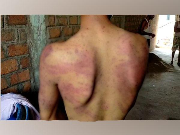 Victim Raj Verma showing several injury marks on his back (Photo/ANI)