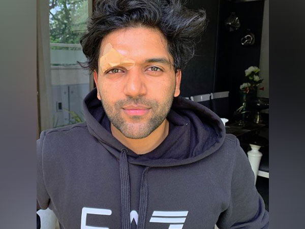 Singer Guru Randhawa shares a picture on his Instagram after being attacked in canada post live concert. (Photo courtesy: Guru Randhawa Instagram)