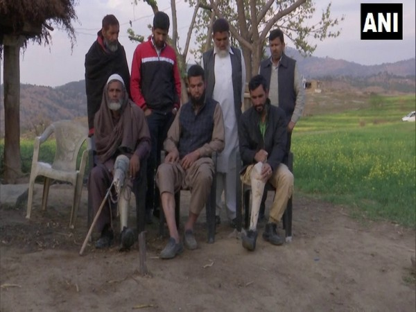 Residents of Jammu and Kashmir's Rajouri district who have suffered injuries due to ceasefire violations. (Photo/ANI)