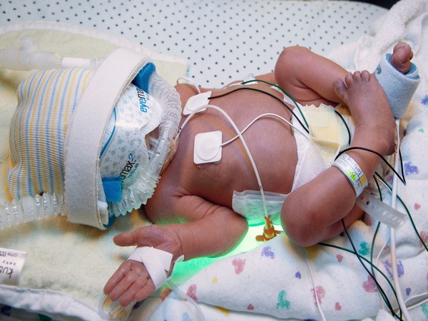 Children aged four to 11 who had a NICU admission were nearly twice as likely to have mental disorders