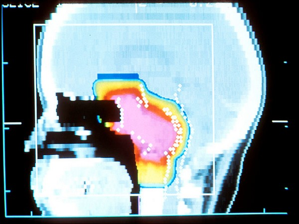 Proton therapy is an FDA-approved alternative radiation treatment that directs positively charged protons at the tumor.