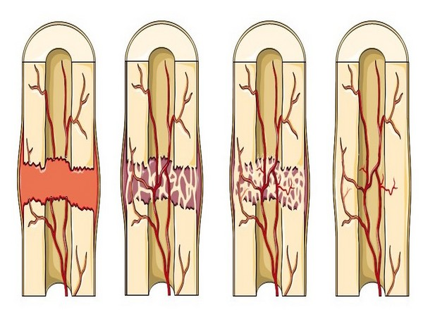 Study finds protein that slows down fracture-healing