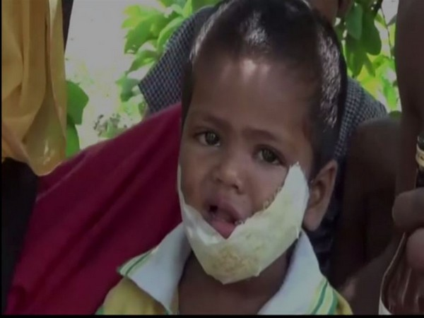 3-year-old Gujan was bitten by a stray dog in the face on Monday in Jhajjar, Haryana.  [Photo/ANI][]