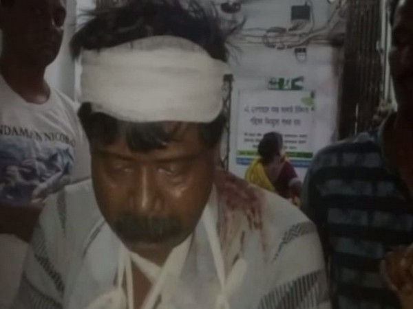 One of the BJP workers who sustained injuries in the clash. Photo/ANI
