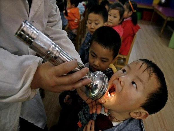 A boy has his mouth checked as part of measures to prevent the hand, foot and mouth disease (HFMD) at a kindergarten in Wuhan